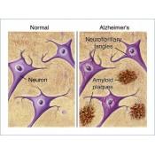 Tratament Boala Alzheimer