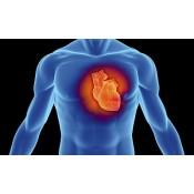 Cardiopatie ischemica-Infarct Miocardic
