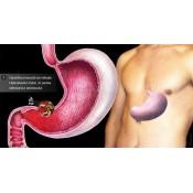 Gastrita si Arsuri Gastrointestinale