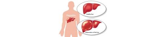 Produse Hepatita